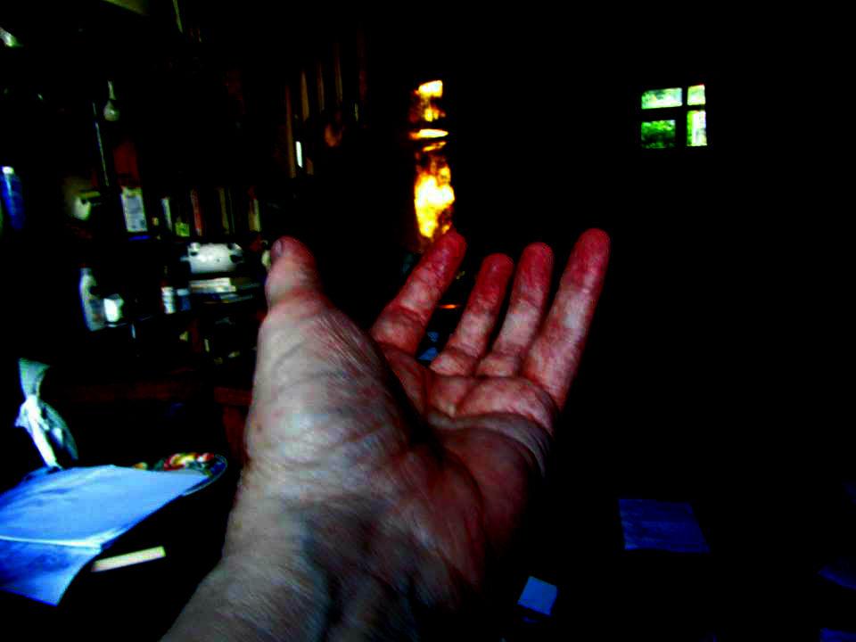 1 dark handn